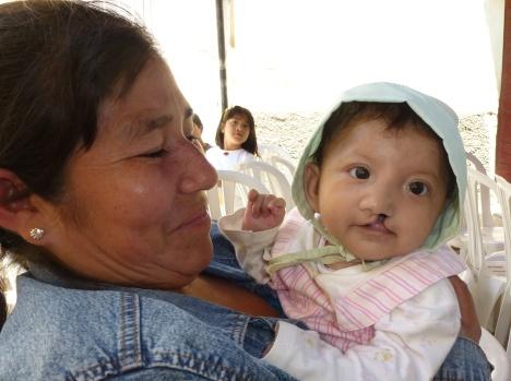 http://facesfoundation.files.wordpress.com/2012/05/cleft1.jpg